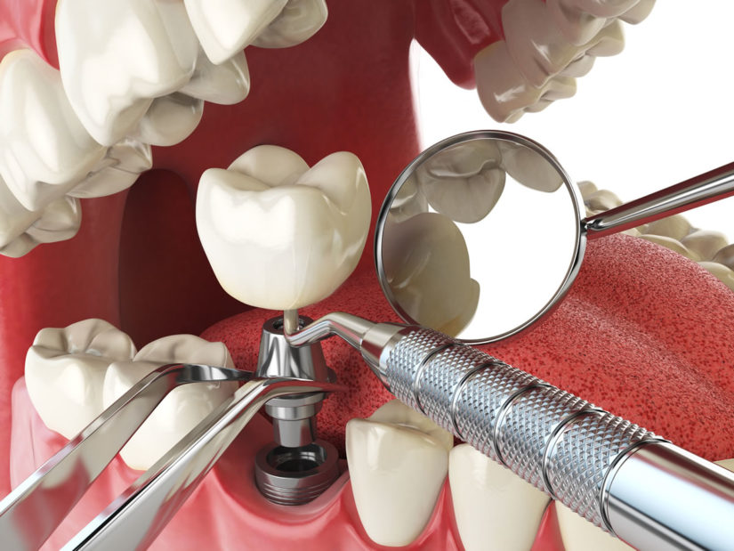 dental implant in Saint Louis